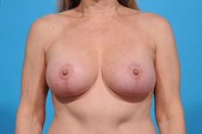breast-augmentation-frontview- after-picture-dallas