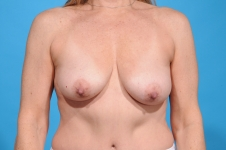 breast-augmentation-frontview-before-picture-dallas