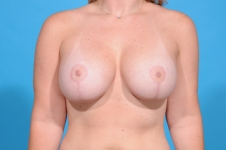 breast-augmentation-lift-after-surgery- frontview-dallas