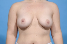 breast-augmentation-lift-before-frontview