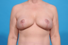 breast explant after pic