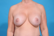 breast explant before pic front