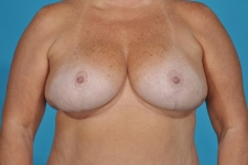 breast-lift-after-picture-dallas