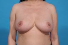 breast- lift-after-picture-frontview-dallas