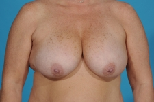 breast-lift-before-picture-dallas
