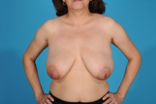 breast-lift-before-picture-frontview-dallas-picture