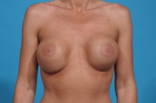breast-revision-before-picture-dallas