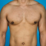 gynecomastia-after-ap.