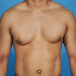 gynecomastia-before-ap