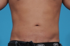 liposuction-after-picture-frontview-dallas