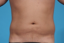liposuction-before-picture-frontview-dallas