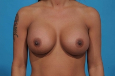 breast-augmentation-after-picture-front