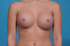 breast-augmentation-after-picture- frontview
