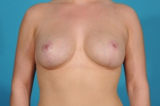 breast-augmentation-after-surgery- frontview-dallas