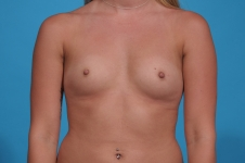breast-augmentation-before-picture- frontview