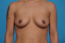 breast-augmentation-before-picture-frontview-dallas
