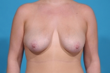 breast-augmentation-before-surgery-frontview