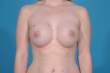 breast-augmentation-after-frontview-picture-dallas