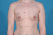 breast-augmentation-before-frontview-picture-dallas