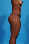 tummy-tuck-after-sideview-picture-dallas